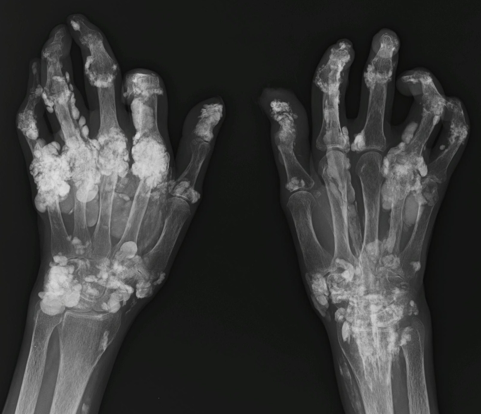 Calcinosis around the joints of hands and arteries | S ...